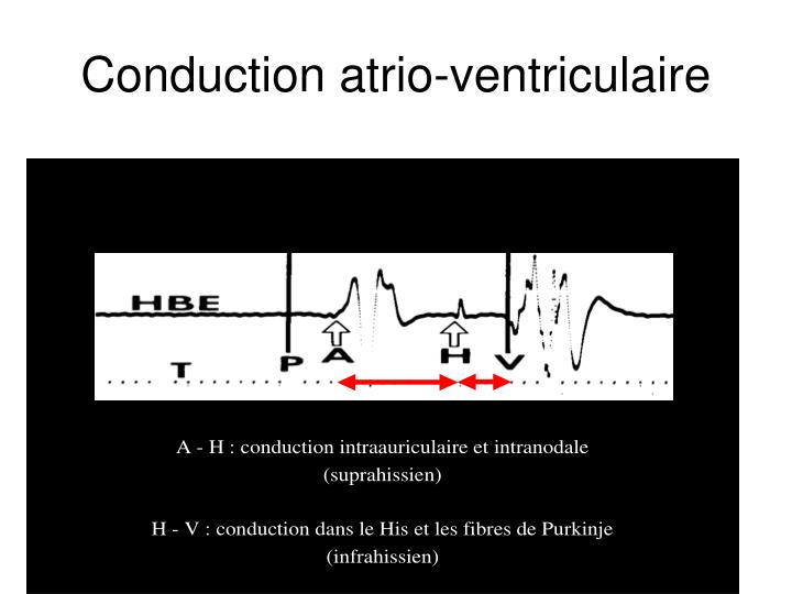 Conduction atrio-ventriculaire