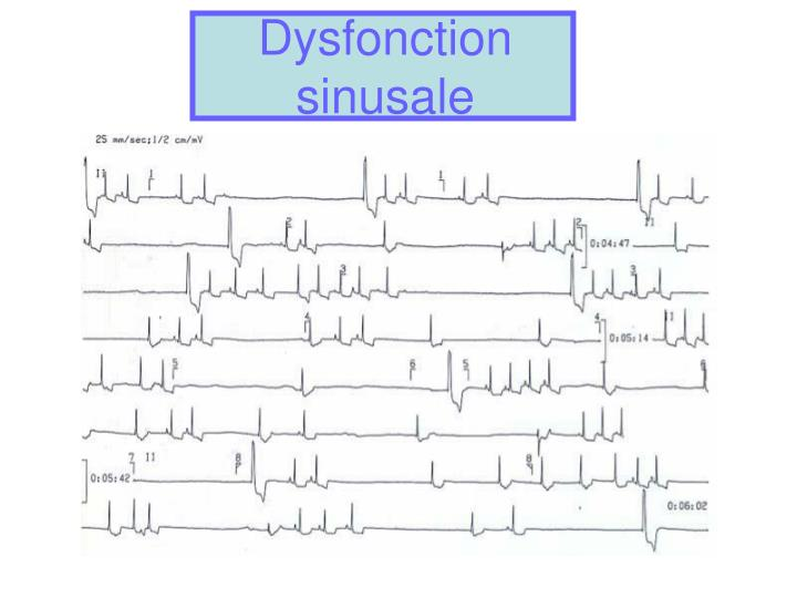 Dysfonction sinusale