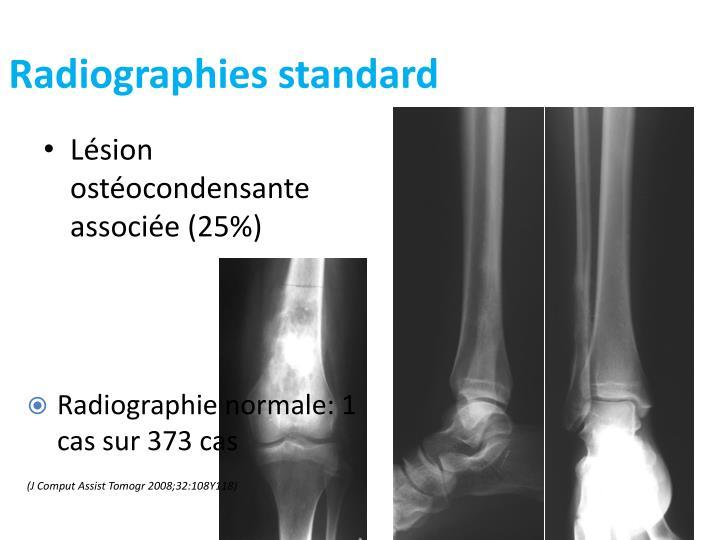 Radiographies standard
