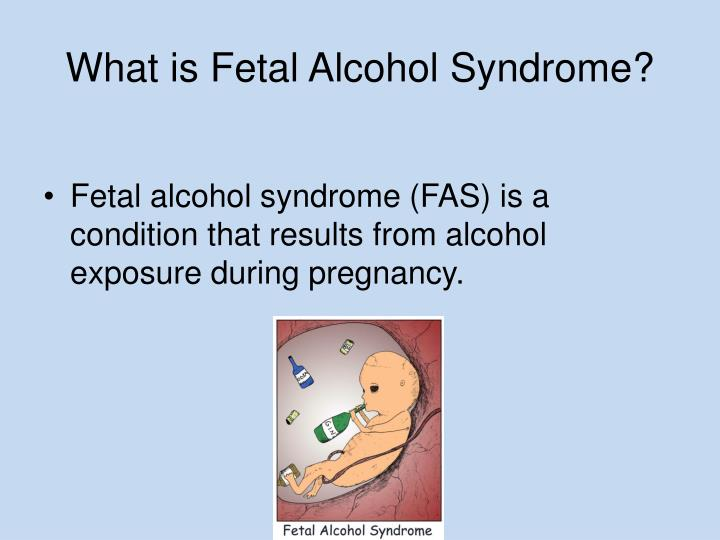 PPT - Fetal Alcohol Syndrome PowerPoint Presentation