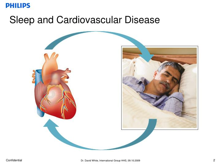 Sleep and cardiovascular disease