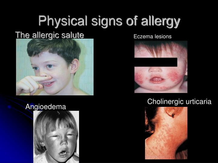 Physical signs of allergy