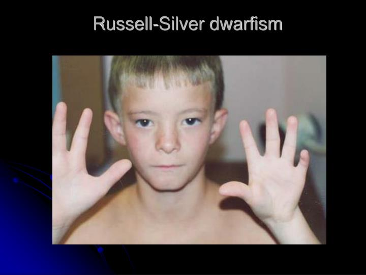 Russell-Silver dwarfism