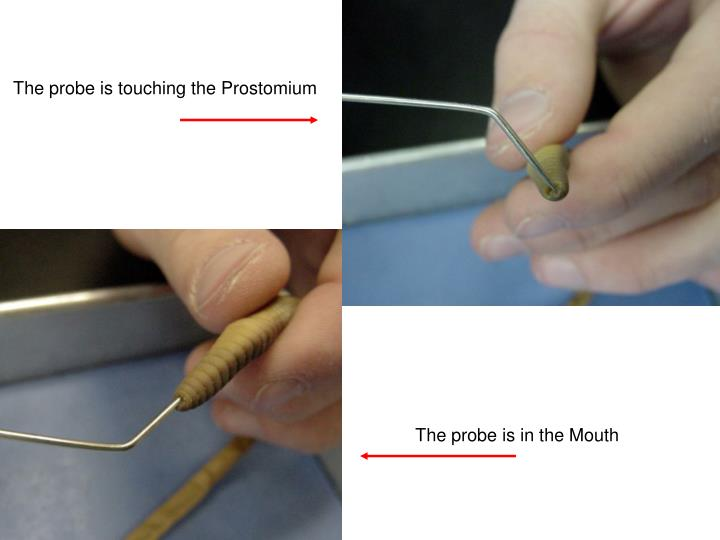 The probe is touching the Prostomium