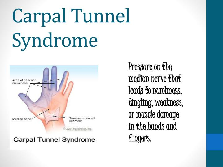 carpal tunnel syndrome physiotherapy management ppt