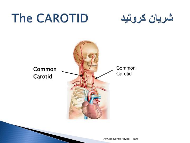 The CAROTID