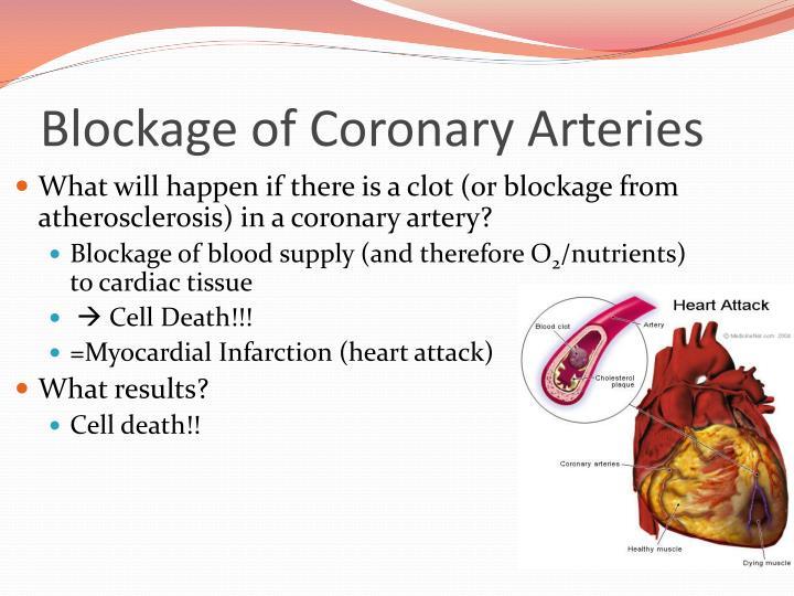 Blockage of Coronary Arteries