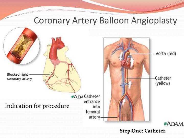 Coronary Artery Balloon Angioplasty