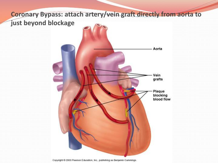 Coronary Bypass: attach artery/vein graft directly from aorta to just beyond blockage