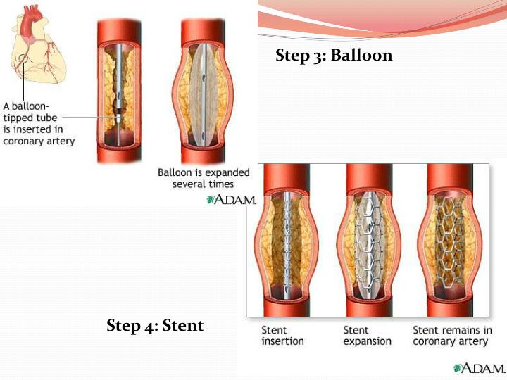 Step 3: Balloon
