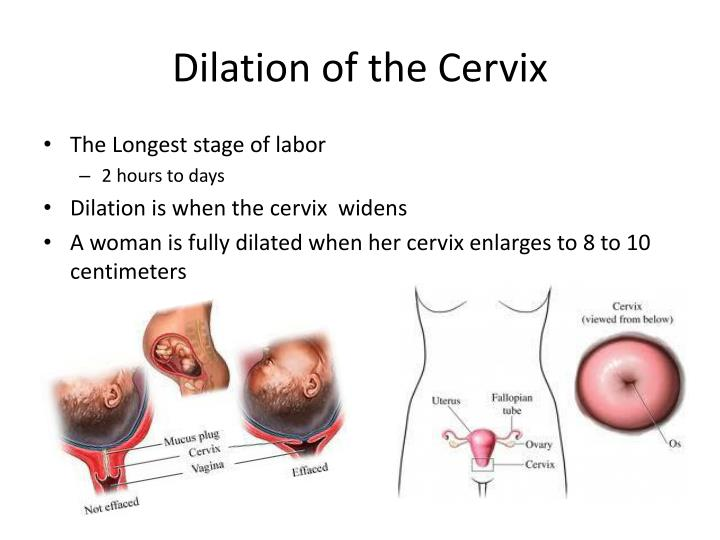 Dilation of the cervix