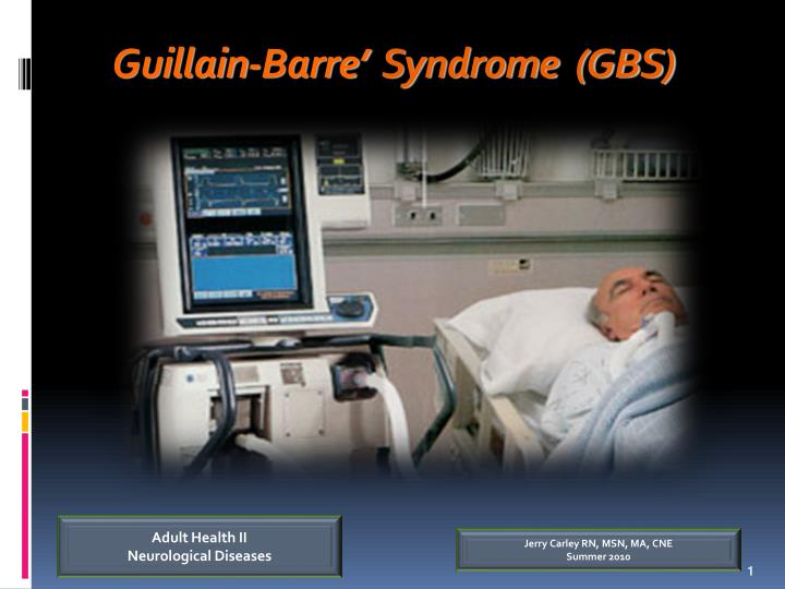 guillain barre syndrome gbs n.