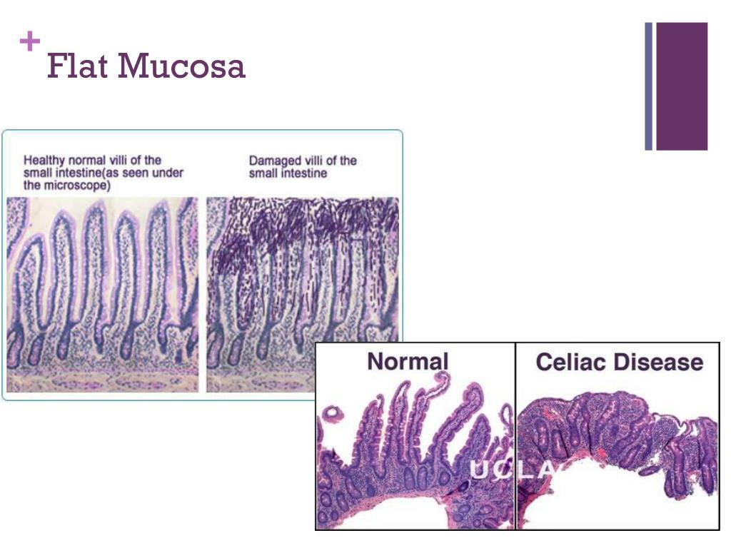 PPT - Celiac Disease PowerPoint Presentation, free ...