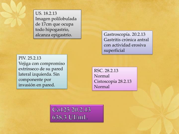 US. 18.2.13