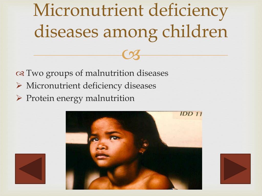 PPT - Common Nutrient Deficiency Diseases among U nder ...