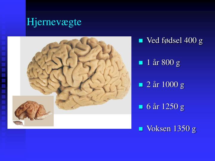Hjernevægte