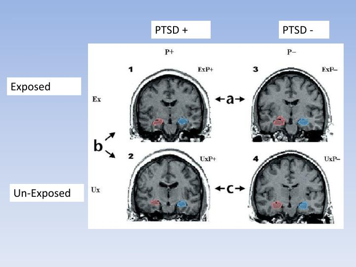 PTSD +