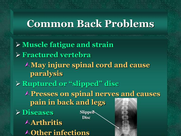 Common Back Problems