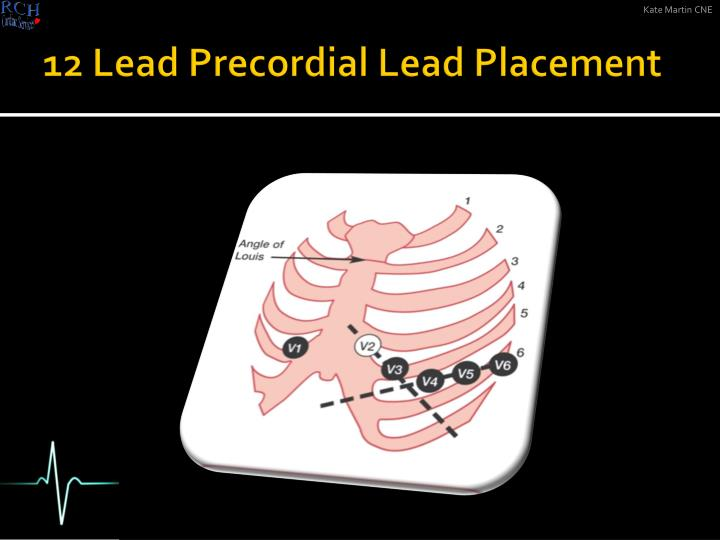 12 Lead Precordial Lead Placement