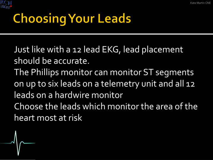 Choosing Your Leads