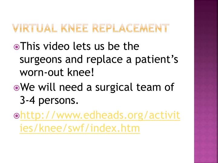 Virtual knee replacement