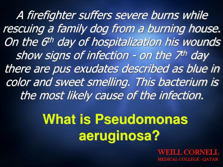 A firefighter suffers severe burns while rescuing a family dog from a burning house. On the 6