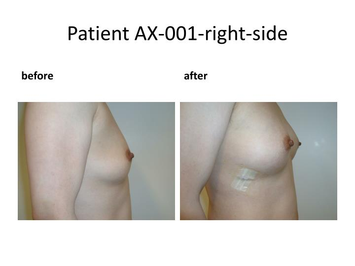 Patient ax 001 right side