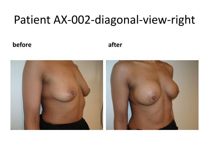 Patient AX-002-diagonal-view-right