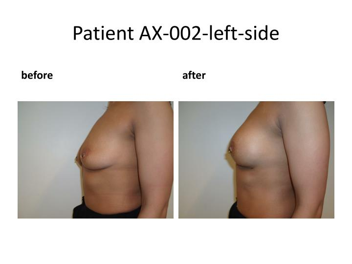 Patient AX-002-left-side