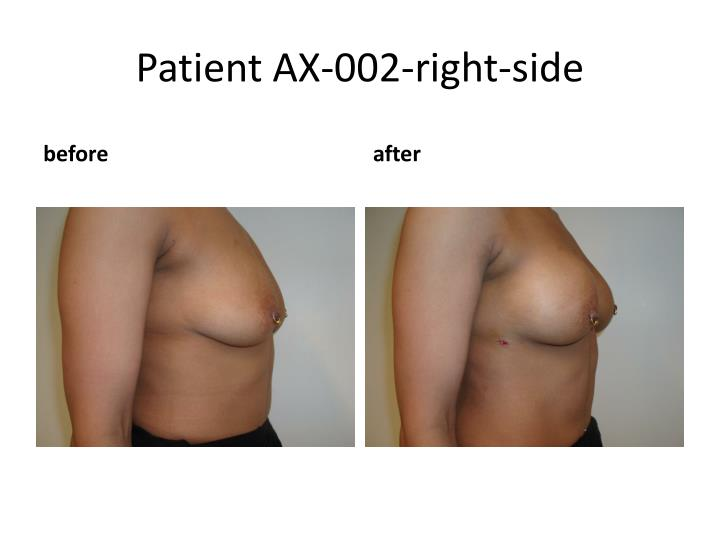 Patient AX-002-right-side