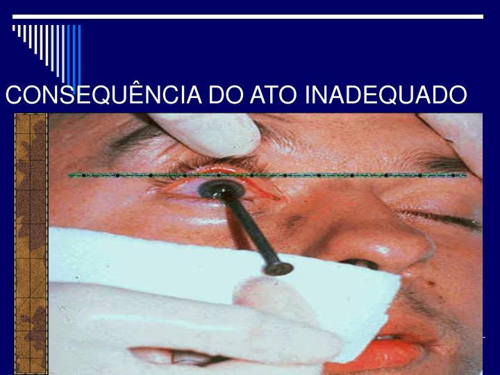 CONSEQUÊNCIA DO ATO INADEQUADO