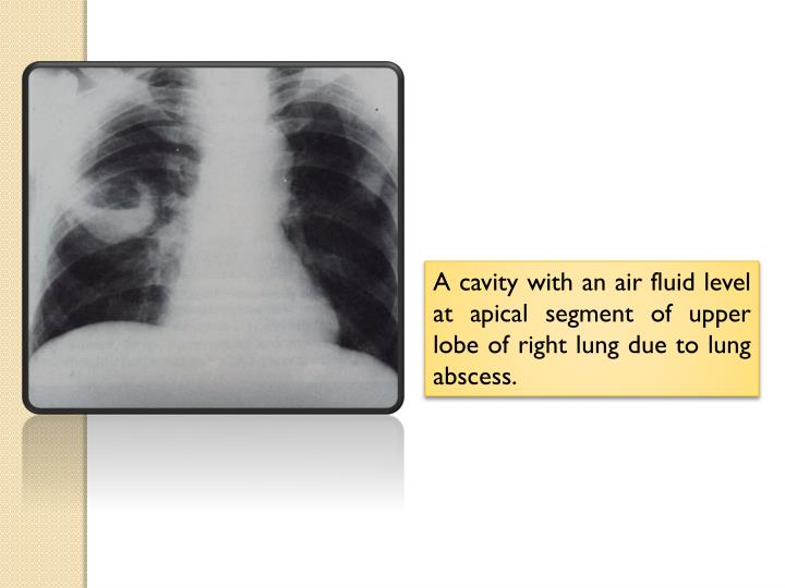 A cavity with an air fluid level at apical segment of upper lobe of right lung due to lung abscess.