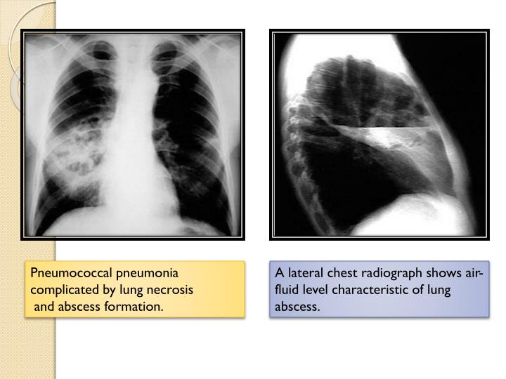 Pneumococcal pneumonia complicated by lung necrosis