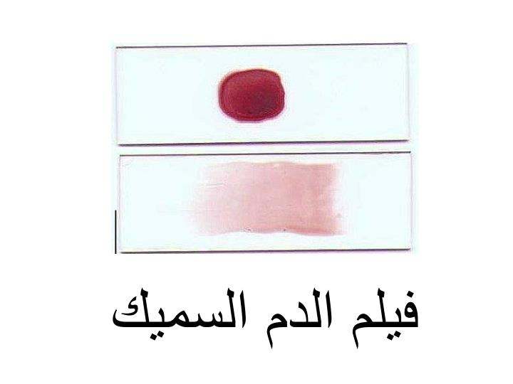 فيلم الدم السميك