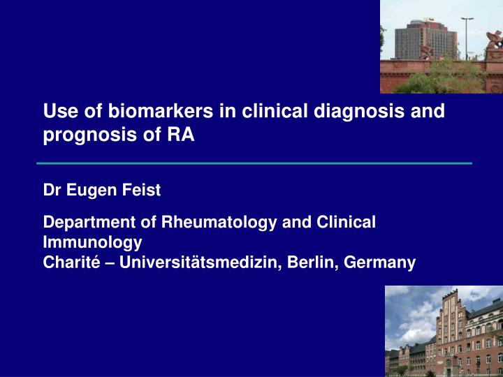 Use of biomarkers in clinical diagnosis and prognosis of ra