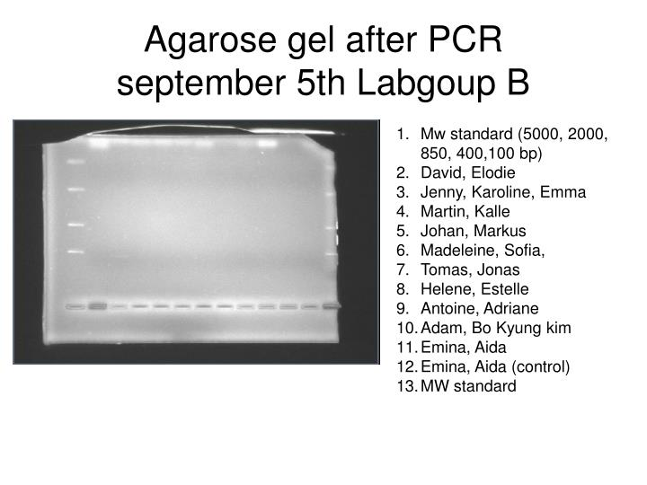 Agarose gel after pcr september 5th labgoup b