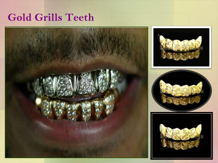 Gold grills teeth