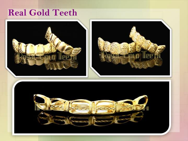 Real gold teeth