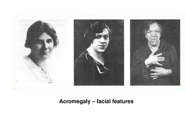 Acromegaly – facial features