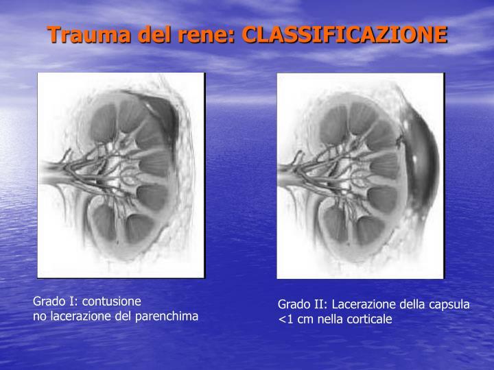 Trauma del rene: CLASSIFICAZIONE