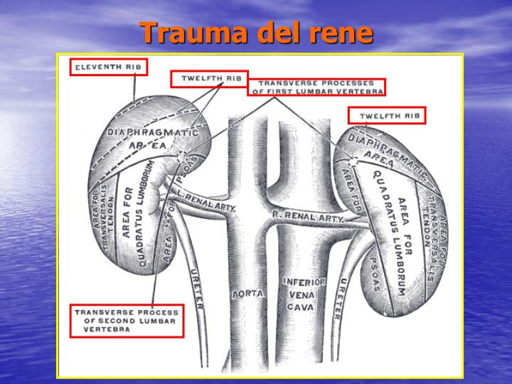 Trauma del rene