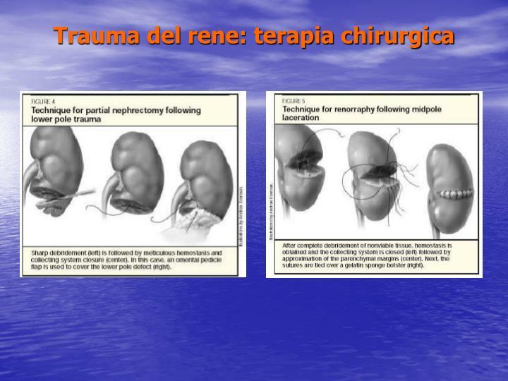 Trauma del rene: terapia chirurgica