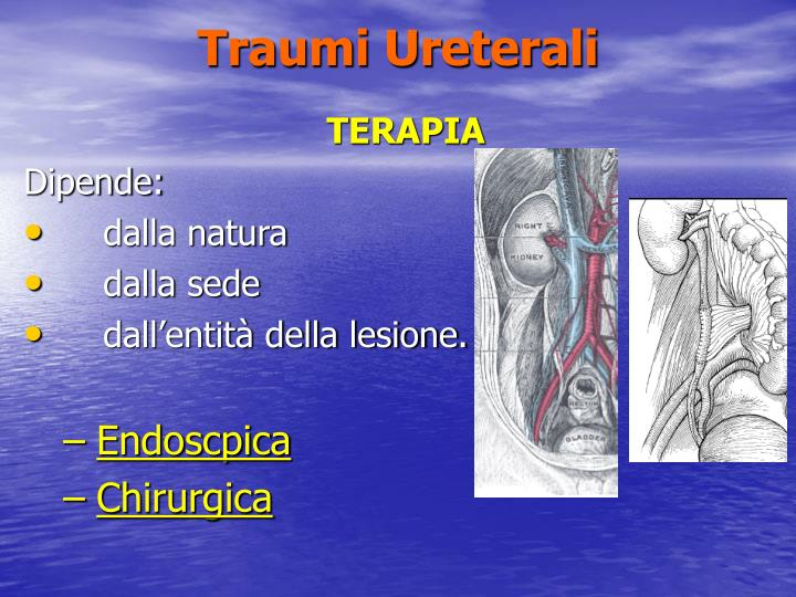 Traumi Ureterali