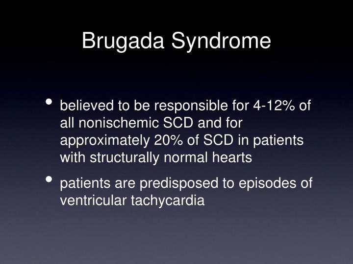 Brugada Syndrome