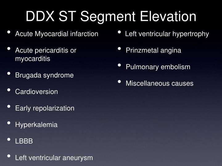 DDX ST Segment Elevation