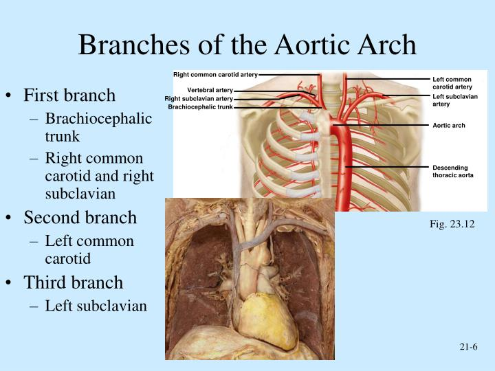 Branches of the Aortic Arch