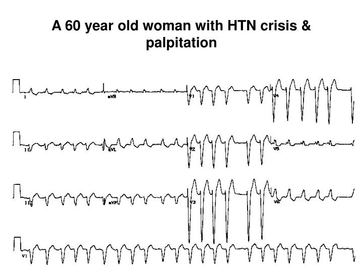 A 60 year old woman with HTN crisis & palpitation