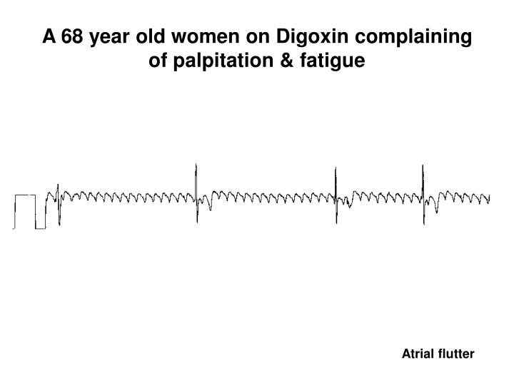 A 68 year old women on Digoxin complaining of palpitation & fatigue