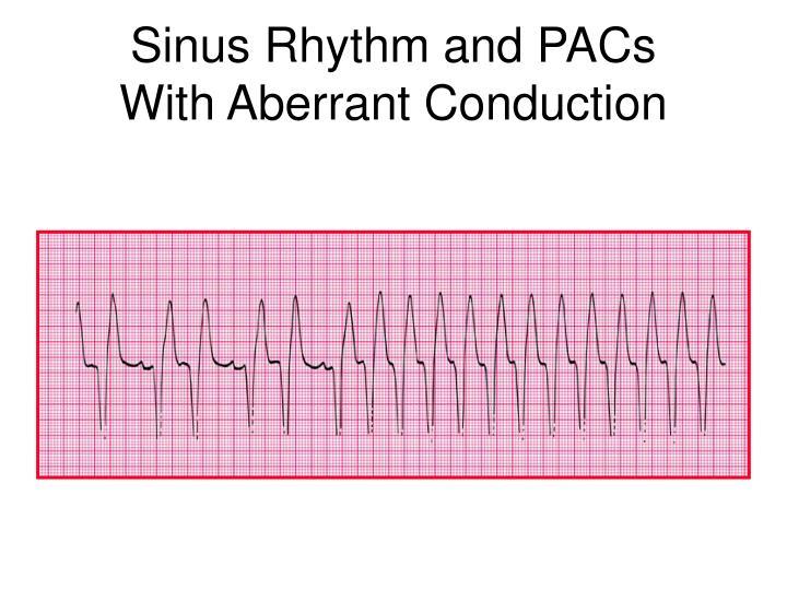 Sinus Rhythm and PACs