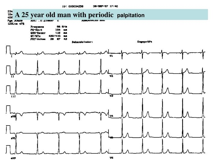 A 25 year old man with periodic